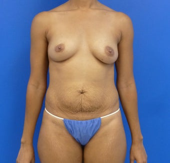 34y.o. female - breast augmentation & abdominoplasty; 397cc / 457 cc silicone implants before 1032028