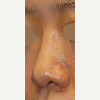 Asian Rhinoplasty To Augmentin Bridge, Project Tip an Narrow Nostrils after 3672430