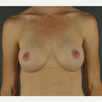 25-34 year old woman treated with Breast Implants after 3026421