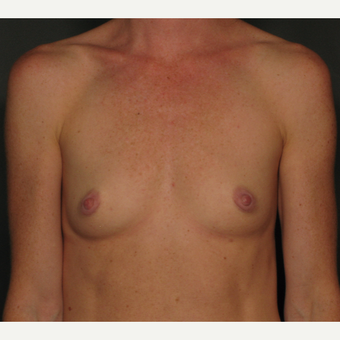 25-34 year old woman treated with Breast Implants before 3026421