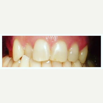 Quick Dental Braces before 3128353