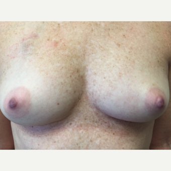 45-54 year old woman treated with Breast Reconstruction before 3629551