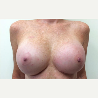 45-54 year old woman treated with Breast Reconstruction after 3629551
