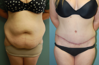 33 year old female pre/post-op abdominoplasty before 1011453