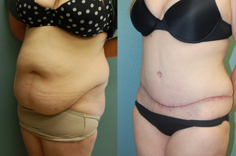 33 year old female pre/post-op abdominoplasty after 1011453