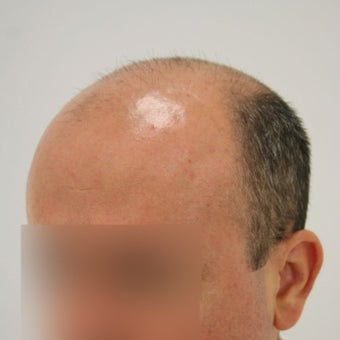 35-44 year old man treated with Hair Transplant before 1622261