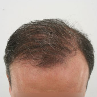 35-44 year old man treated with Hair Transplant 1622261