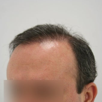 35-44 year old man treated with Hair Transplant after 1622261