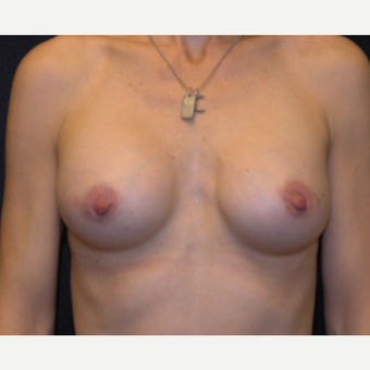 45-54 year old woman treated with Breast Augmentation after 3454872