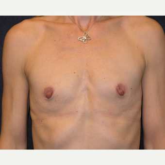 45-54 year old woman treated with Breast Augmentation before 3454872