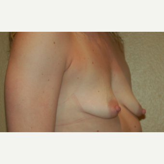 25-34 year old woman treated with Breast Lift with Implants before 3498093