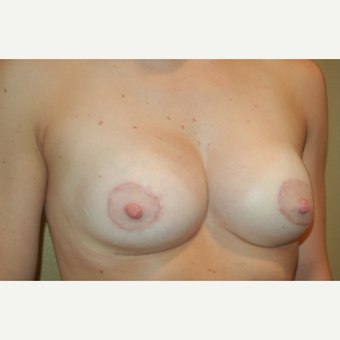 25-34 year old woman treated with Breast Lift with Implants after 3498093