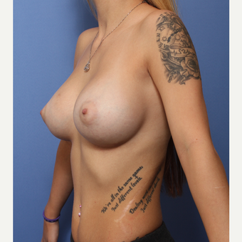 18-24 year old woman treated with Breast Augmentation after 3505965