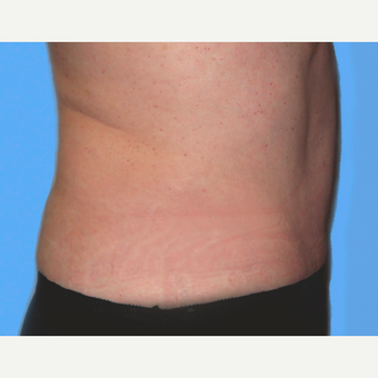 Tummy Tuck after 3813537