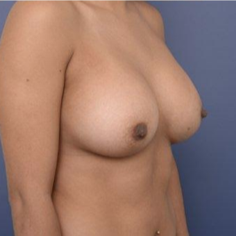 29 year old woman treated with Breast Augmentation after 3670118