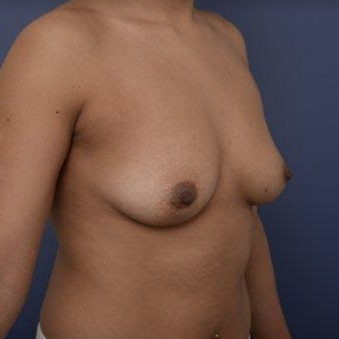 29 year old woman treated with Breast Augmentation before 3670118