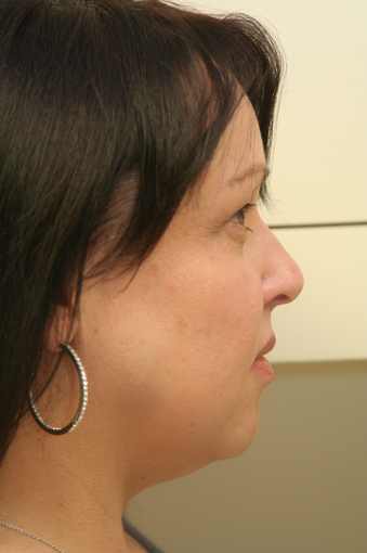 Ultherapy after 1466886