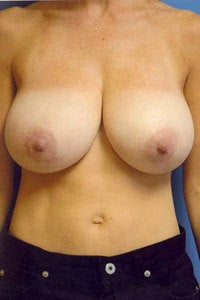 breast reduction before 1065133