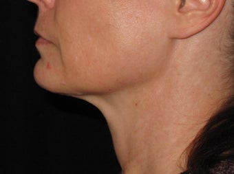 Ultherapy treatment for lower face 1253122