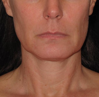 Ultherapy treatment for lower face before 1253122