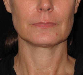 Ultherapy treatment for lower face after 1253122