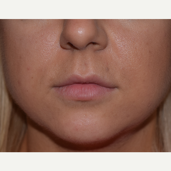 25-34 year old woman treated with Restylane Lip Augmentation before 3642198