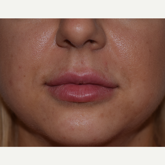 25-34 year old woman treated with Restylane Lip Augmentation after 3642198
