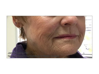 74 year old woman treated with Mohs Surgery after 1341054