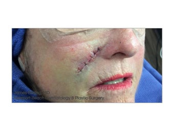 74 year old woman treated with Mohs Surgery before 1341054