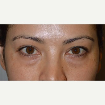 Young female with under eye bags who underwent transconjuctival lower blepharoplasty with skin pinch before 2359916