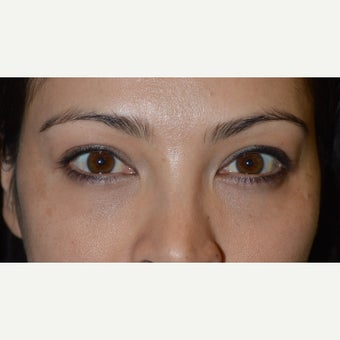 Young female with under eye bags who underwent transconjuctival lower blepharoplasty with skin pinch after 2359916