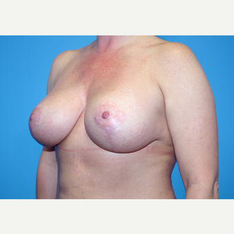 35-44 year old woman treated with Breast Implants after 3440014