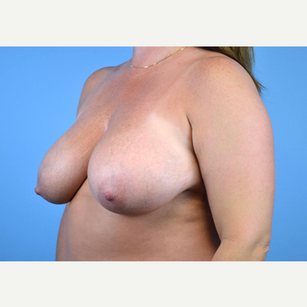 35-44 year old woman treated with Breast Implants before 3440014