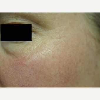 45-54 year old woman treated with Botox after 2713096