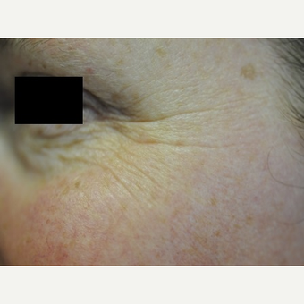 45-54 year old woman treated with Botox before 2713096