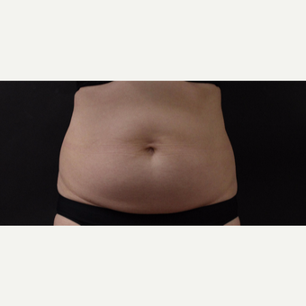 55 year old woman treated with CoolSculpting before 3220703
