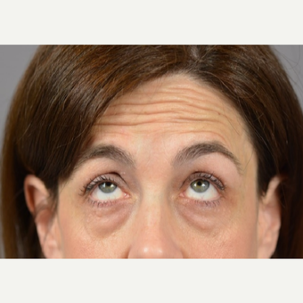 45-54 year old woman treated with Eyelid Surgery before 3411482