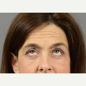 45-54 year old woman treated with Eyelid Surgery after 3411482