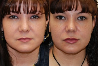 Lip Augmentation with Silikon-1000 before 351129