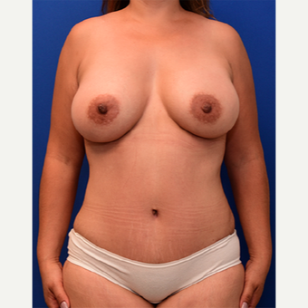 35-44 year old woman treated with Mommy Makeover after 3760782
