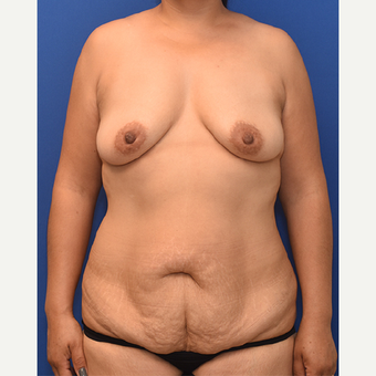35-44 year old woman treated with Mommy Makeover before 3760782