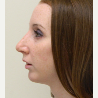 18-24 year old woman treated with Rhinoplasty after 3371723