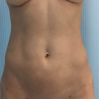 35-44 year old woman treated with Liposculpture after 3522553