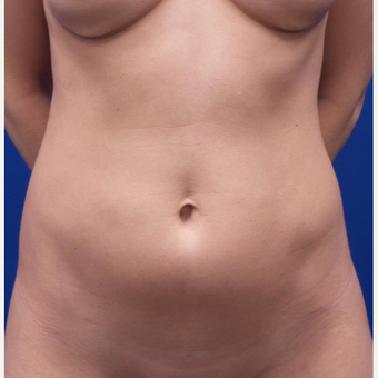 35-44 year old woman treated with Liposculpture before 3522553