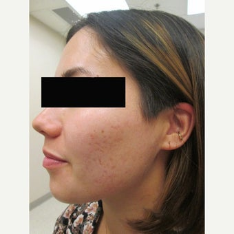 18-24 year old woman treated with Acne Scars Treatment
