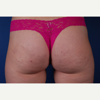 25-34 year old woman treated with Cellfina after 3027450