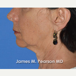 55-64 year old woman treated with Facelift before 3815013