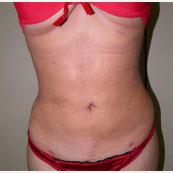 18-24 year old woman treated with Liposuction after 3122840