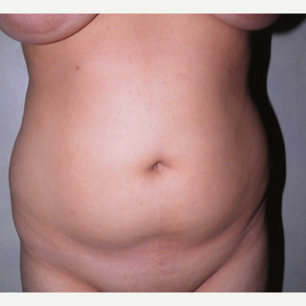 18-24 year old woman treated with Liposuction before 3122840
