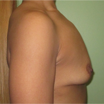 25-34 year old woman treated with Breast Implants before 3423862
